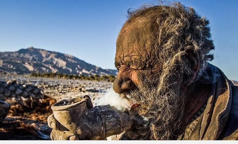 60 yıldır yıkanmayan adamın görüntüleri 5