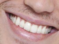 Dişlerde oluşan problemlere dikkat